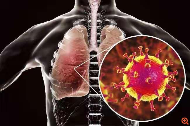 Κορονοϊός: Ελπιδοφόρα τα πρώτα δεδομένα από τη χρήση του φαρμάκου Calquence της AstraZeneca