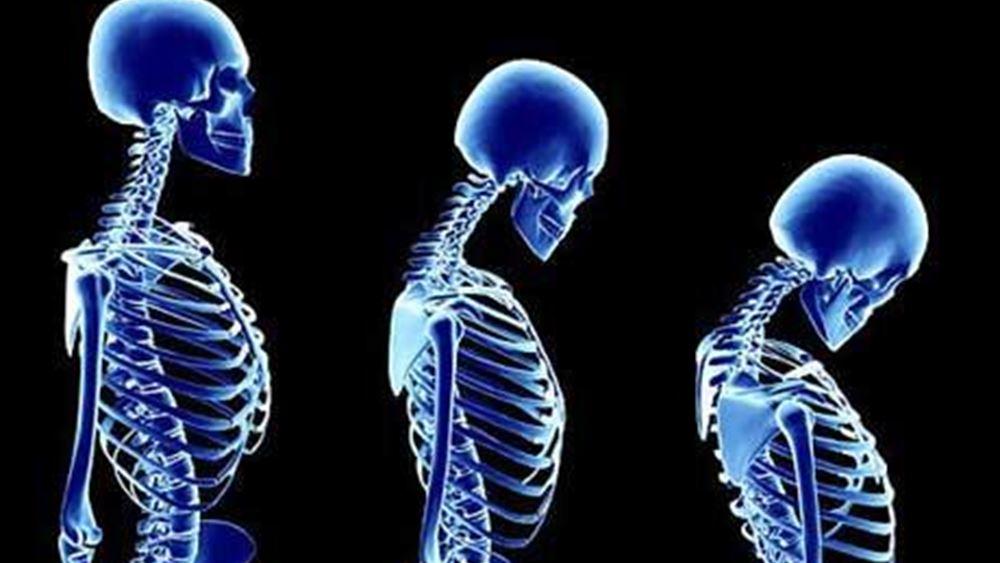 Παγκόσμια Ημέρα Οστεοπόρωσης: Σήμερα υπάρχει λύση