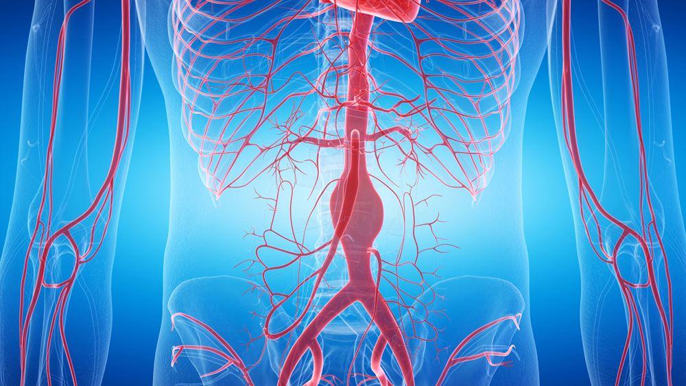 Ανεύρυσμα κοιλιακής αορτής: 3 καίριες ερωτήσεις για τη νόσο