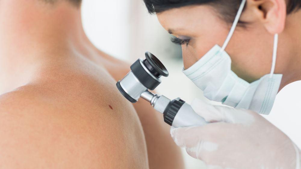 Έχετε ελέγξει ποτέ το δέρμα σας;Προλάβετε τον καρκίνο του δέρματος