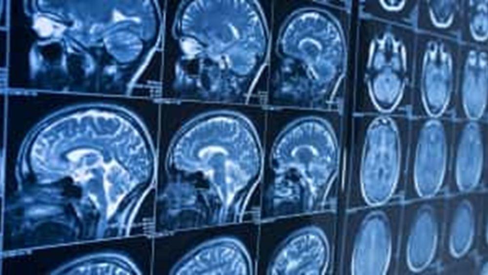 Θεσσαλονίκη: Στην ιατρική ακριβείας στρέφονται οι ελπίδες για τη θεραπεία της νόσου Αλτσχάιμερ
