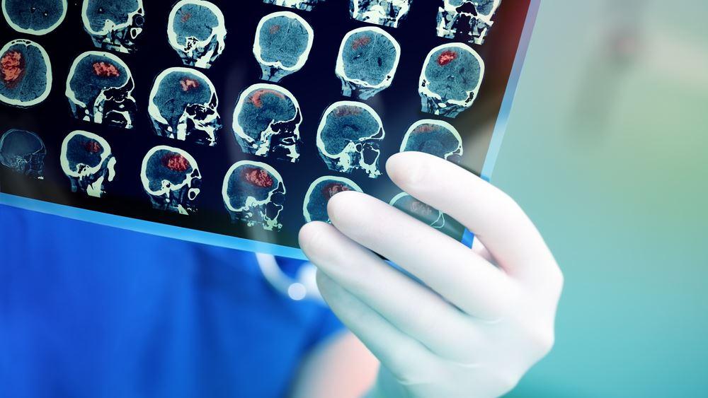 Ποιοι κινδυνεύουν περισσότερο από εγκεφαλικό
