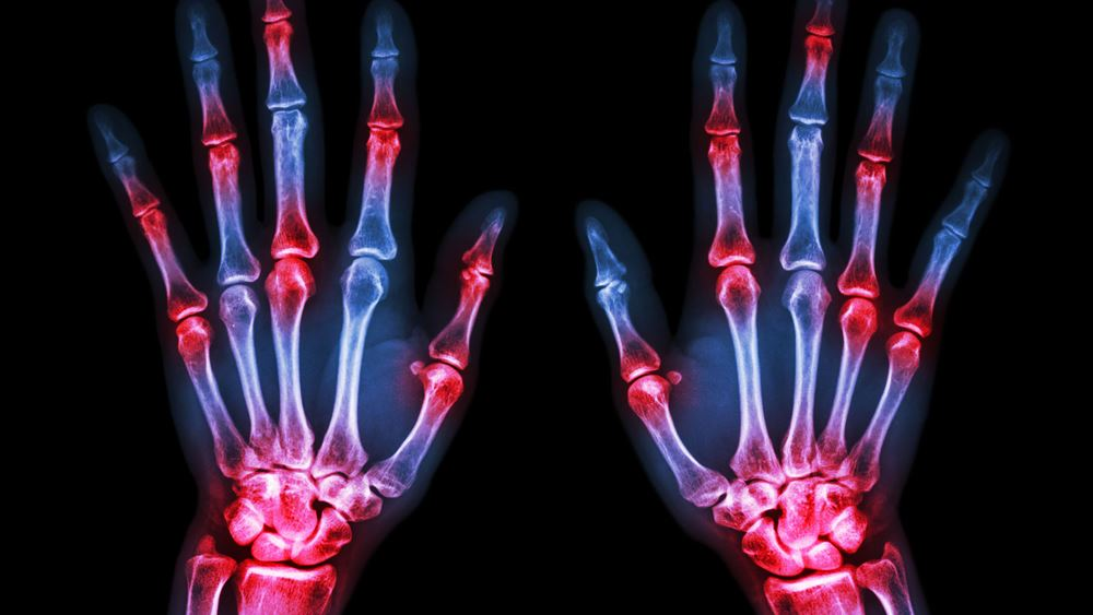 Σημαντική έγκριση νέας θεραπείας για τους ασθενείς με ρευματοειδή αρθρίτιδα