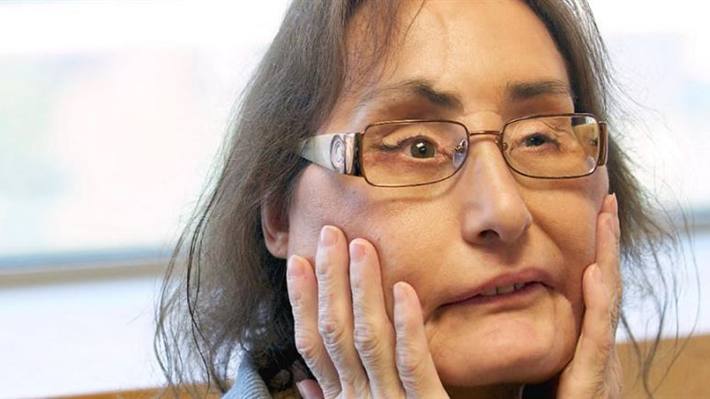 ΗΠΑ: Πέθανε η πρώτη Αμερικανίδα που έκανε μεταμόσχευση προσώπου