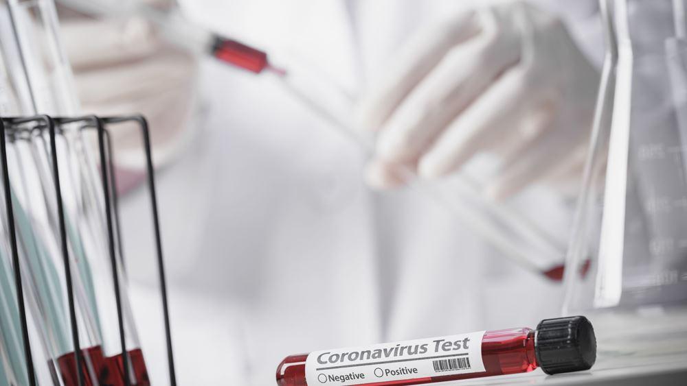 Ευρωπαϊκή μελέτη: Η υδροξυχλωροκίνη είναι ασφαλής για την καρδιά των ασθενών με κορονοϊό