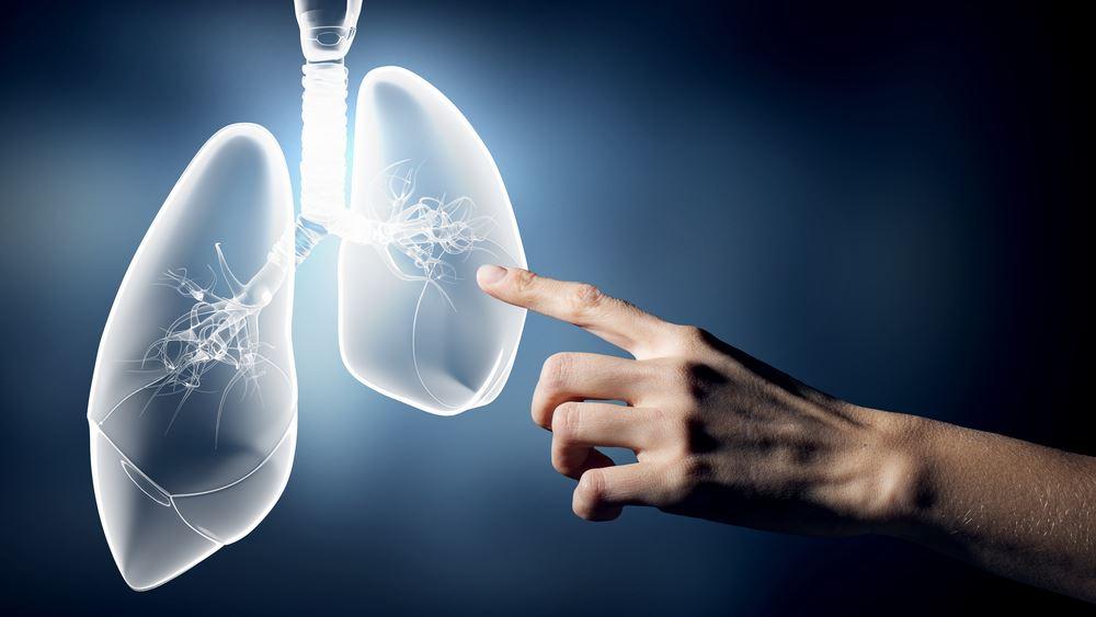 Νέα θεραπεία δίνει σημαντικές ελπίδες για τον καρκίνο του πνεύμονα