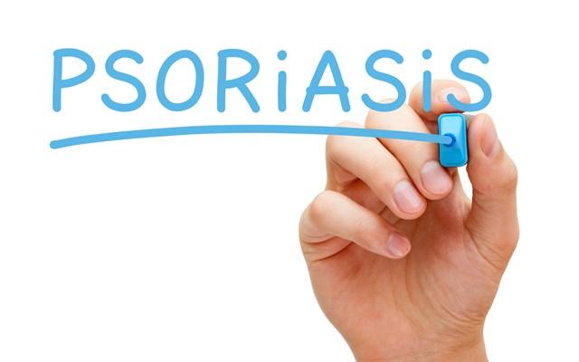 Ελληνική έρευνα: Nεότερα δεδομένα για τη χρήση απρεμιλάστης σε ασθενείς με μέτρια ψωρίαση