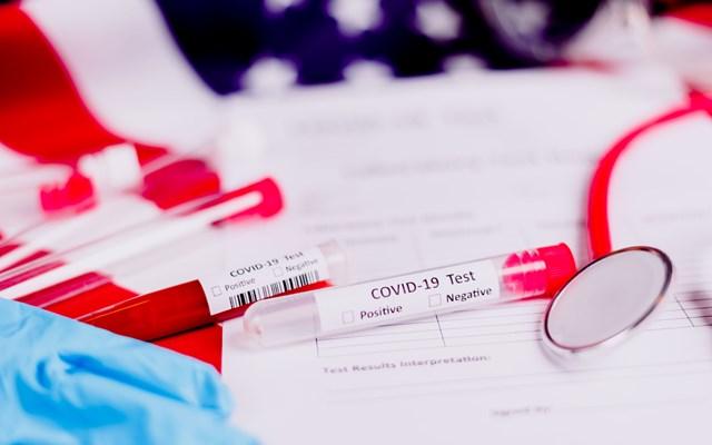 Επιτυχείς οι δοκιμές του νέου αντιικού φαρμάκου για τον κορονοϊό