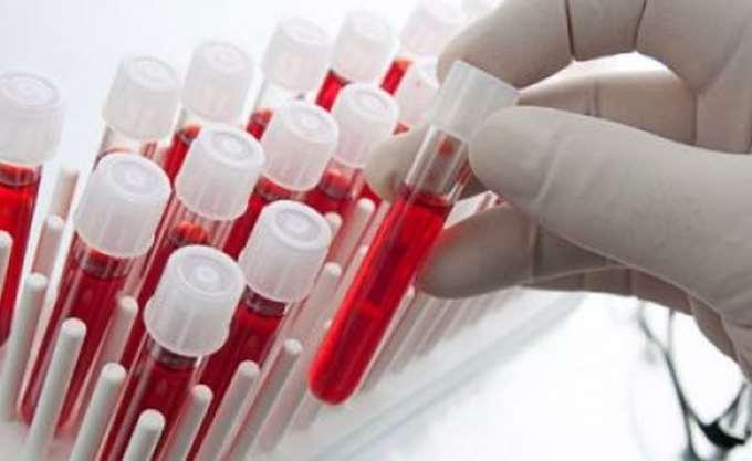 Πειραματικό τεστ αίματος μπορεί να κάνει διάγνωση οποιουδήποτε καρκίνου μέσα σε μόνο δέκα λεπτά