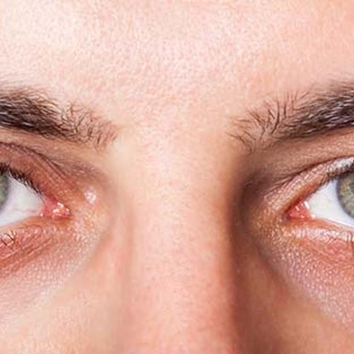 Ραγοειδίτιδα  Η 5η αιτία τύφλωσης στο δυτικό κόσμο b2aa255370b
